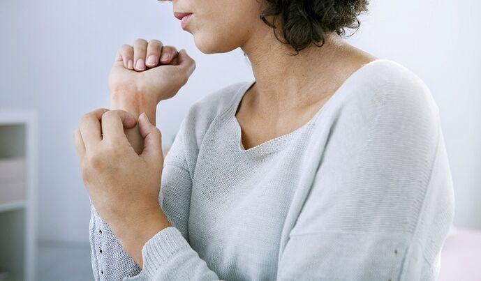 psoriasis hoofdhuid dieet